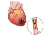 南开养老院:心肌梗塞是一种怎样的感觉?